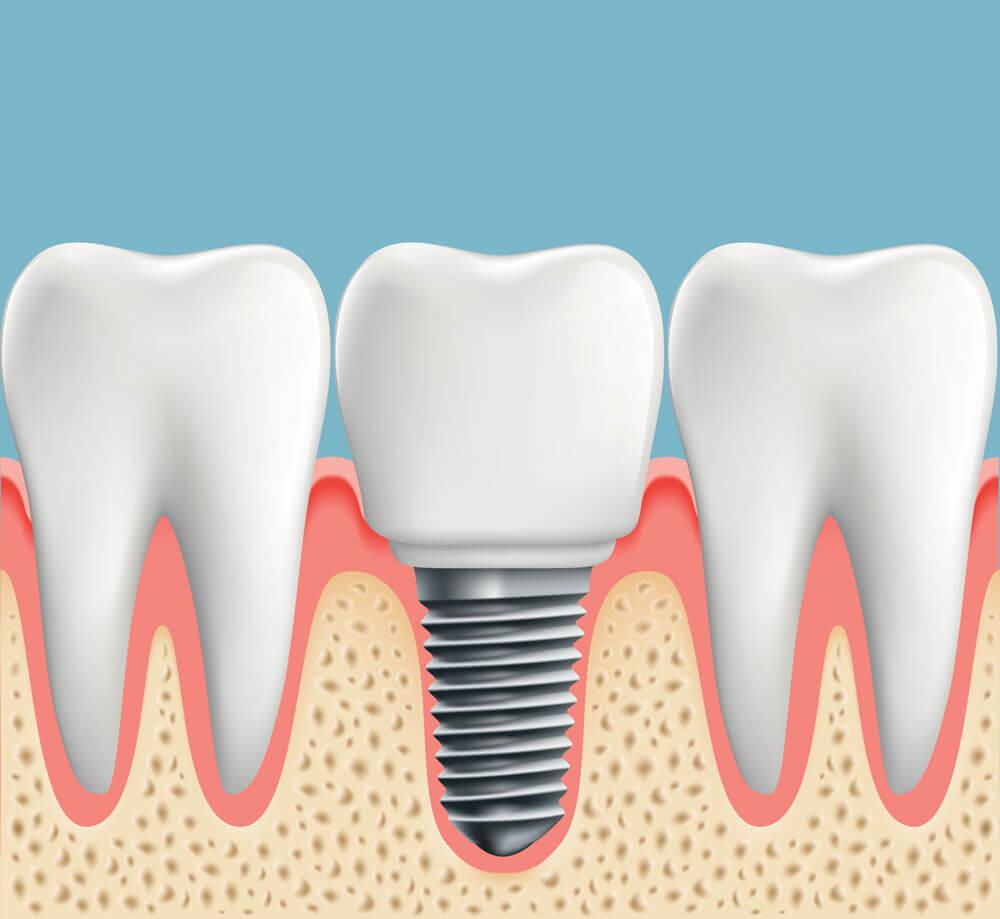 Implant dentaire : une bonne dent artificielle ?
